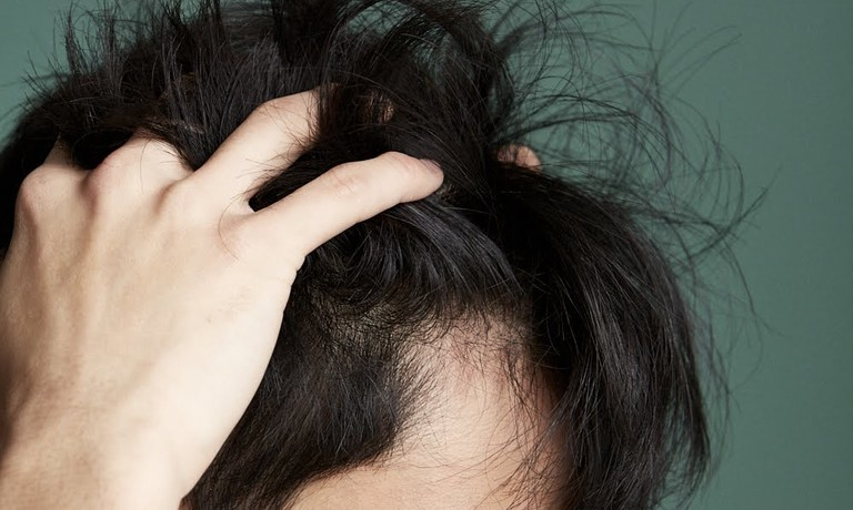 The common causes of hair loss